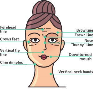 Botox injection Sites Forehead, Brow, Forwn, Crows, Bunny Lines, Neck Bands, Downturned Mouth