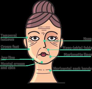 Inject Dermal Fillers in Nose, naso-labial, marionette, jaw, mental crease for instant change