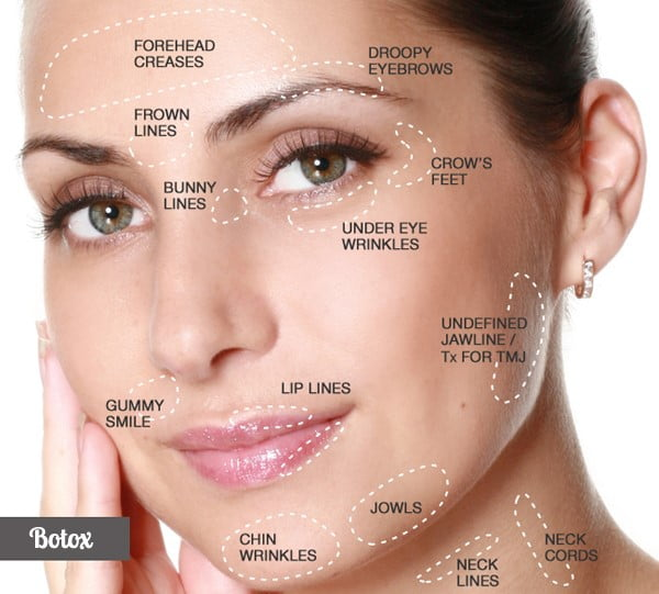 Botox Areas injectables