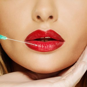 Lip Filler injection Juvederm Doctor