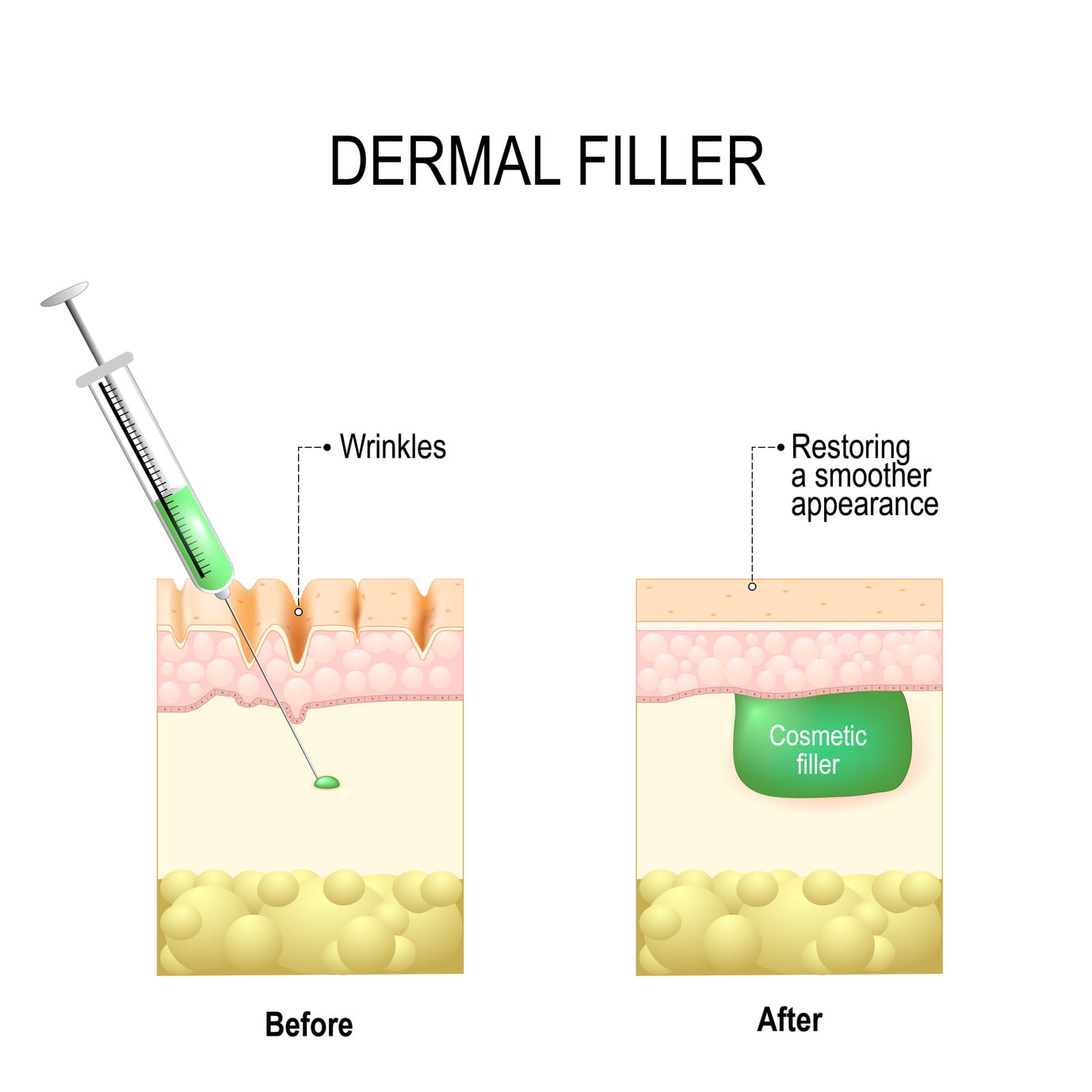 5 Things to Know About Dermal Fillers