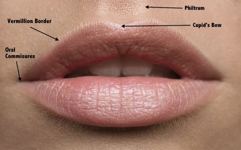 How do Lip fillers work and what you need to know
