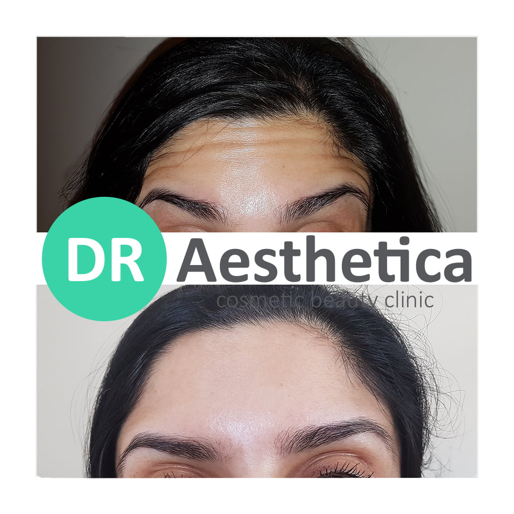 Fresh forehead before and after botox birmingham