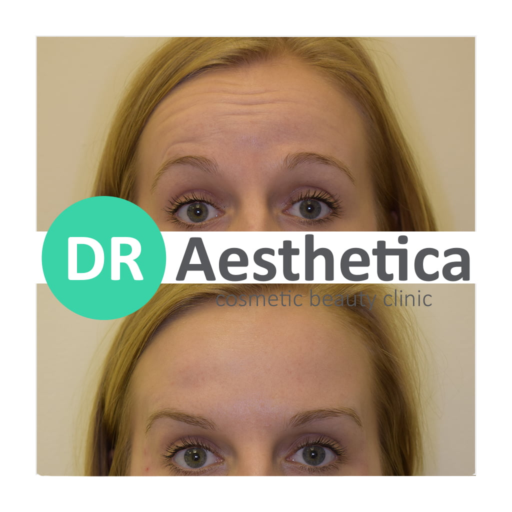 Soften forehead lines with anti wrinkle injections