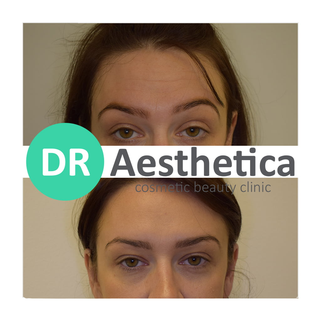 Forehead Botox fresh face before and after