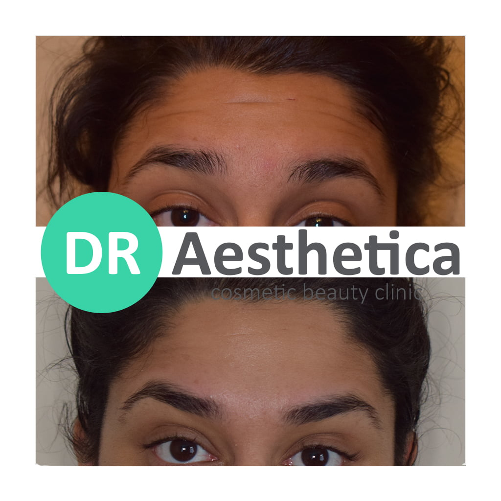 Baby botox soften forehead lines and make skin fresher
