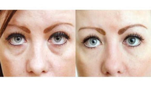 tear trough filler for dark eyes, shadows, eye rejuvenation