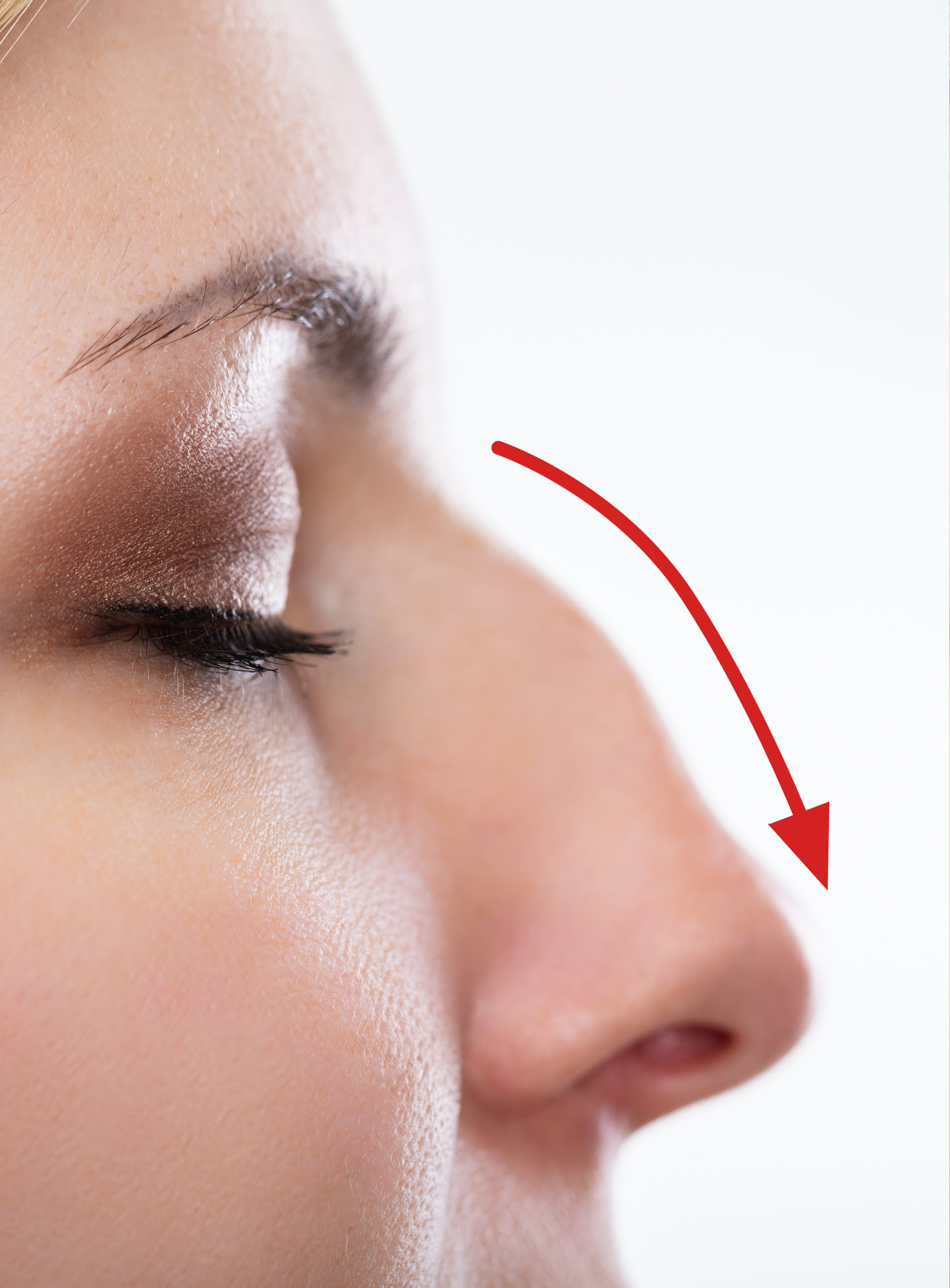 Hooked Nose Bump on Nose Treatment - Non Surgical Cosmetic