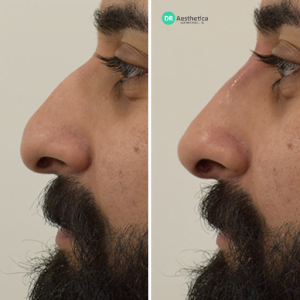 Hooked nose non surgical rhinoplasty
