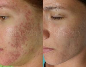 active acne no roacutane