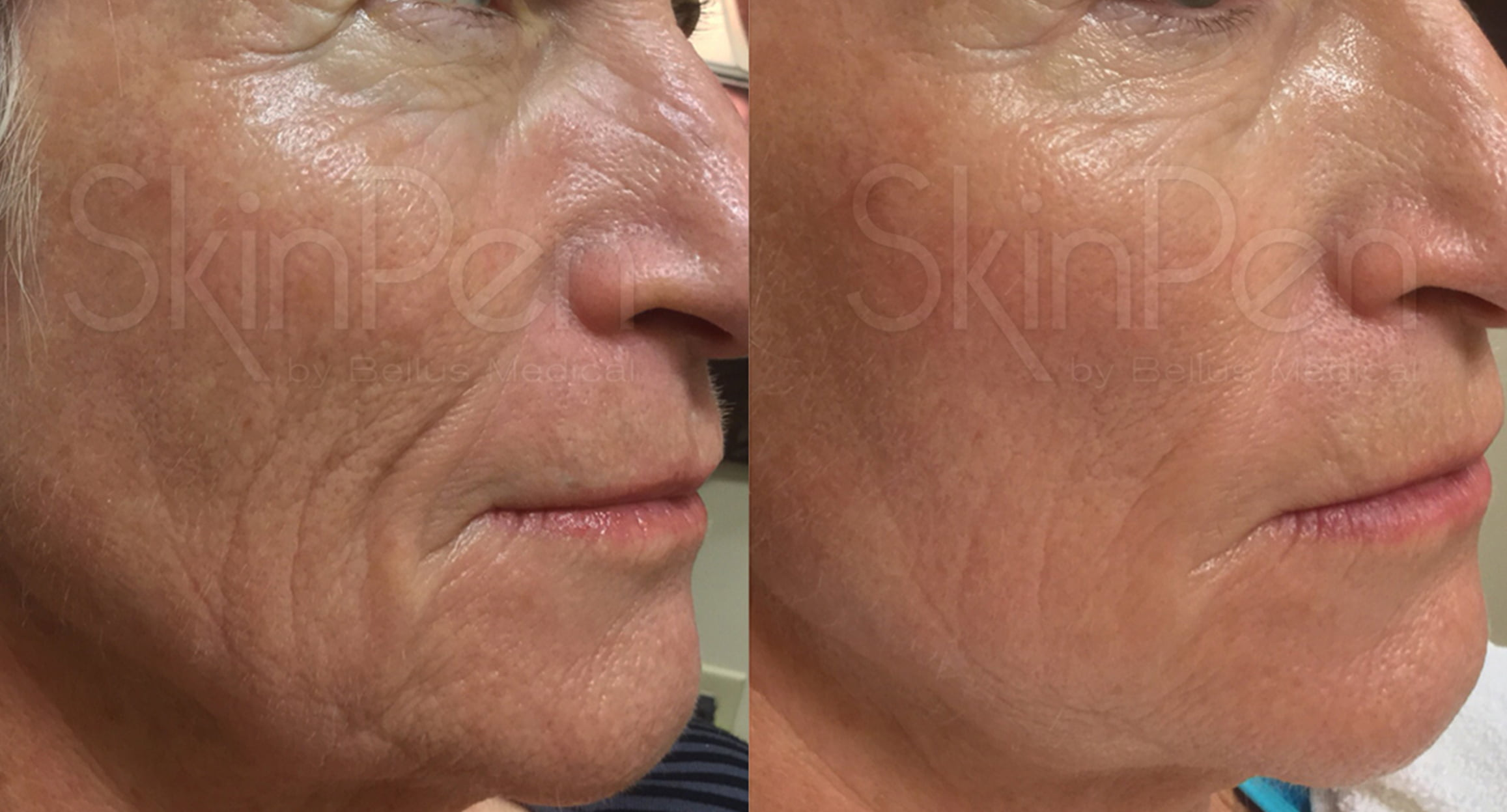 Nose to mouth lines microneedling