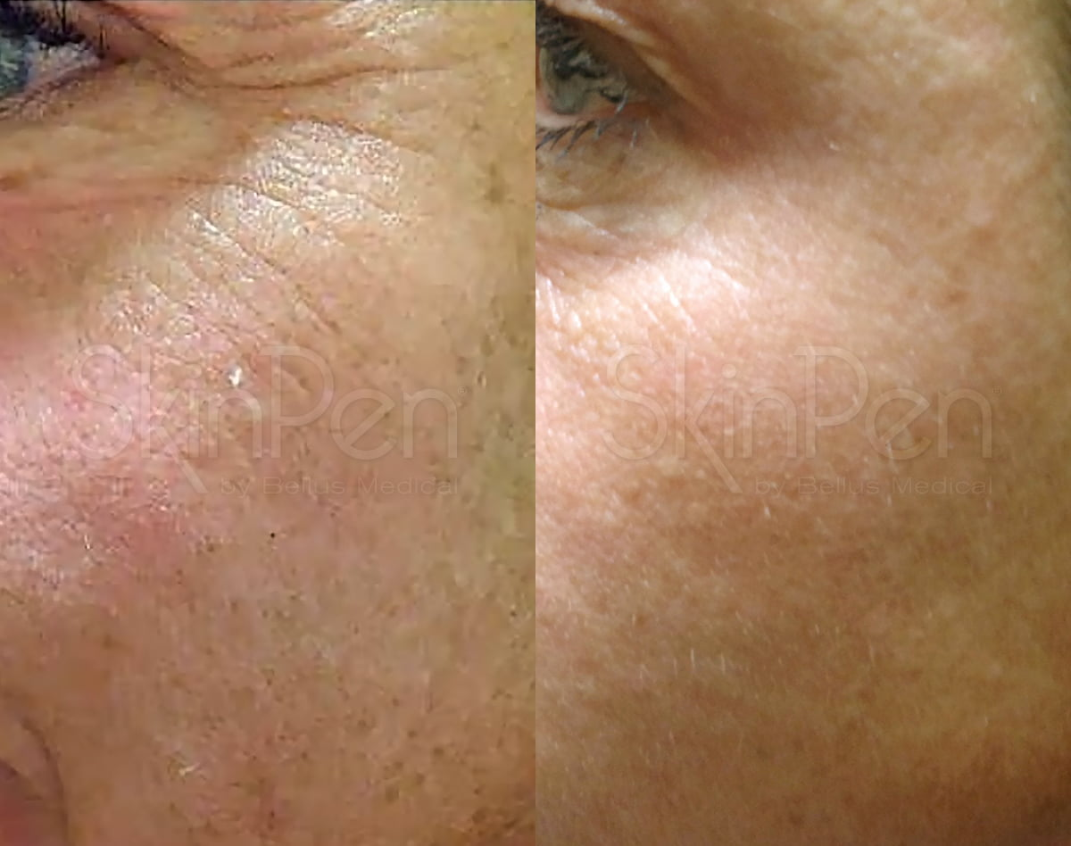 crows feet botox lines around eyes microneedling skin resurface