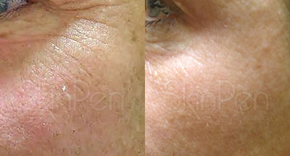 Microneedling Fine Lines reduction
