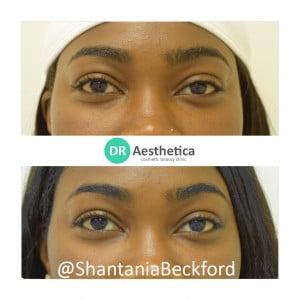 Tear trough filler on Shantania Beckford