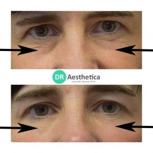 dark under eyes treatment tear trough filler