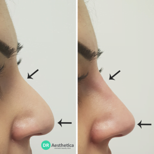 3 point non surgical rhinoplasty tip work