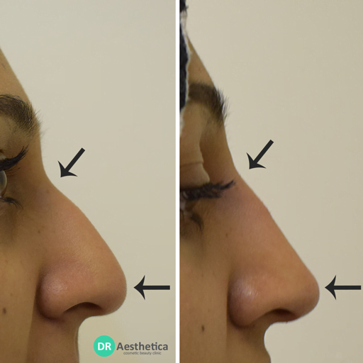 Hooked nose rhinoplasty non surgical