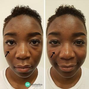 mid facial volume loss tear trough cheek combination cannula