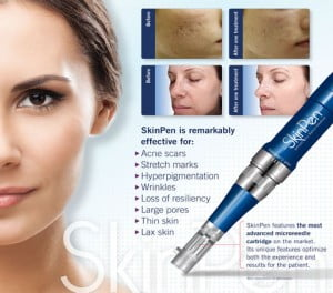 Microneedling acne scars rosacea stretch marks