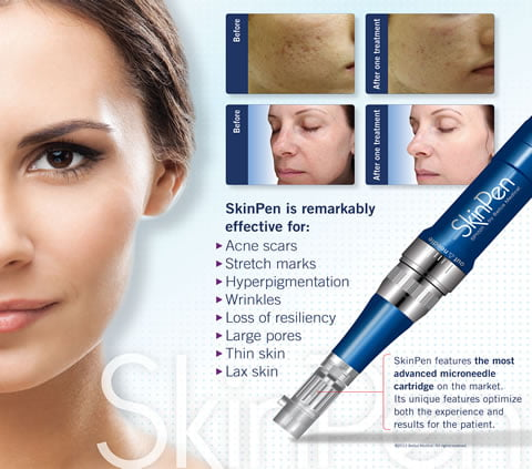 Medical Microneedling Collagen Induction Therapy Skin Pen - Skin