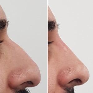 hooked nose asian nose bump on nose no surgery correct nose roman nose