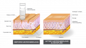 Mechanical Microneedling for acne scars, stretch marks, collagen induction therapy, smooth deep lines