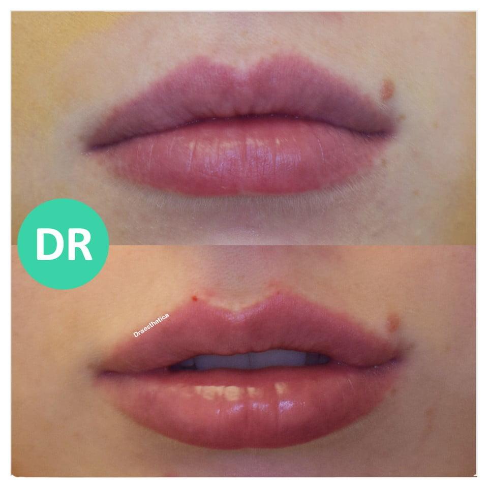 lip filler before and after result