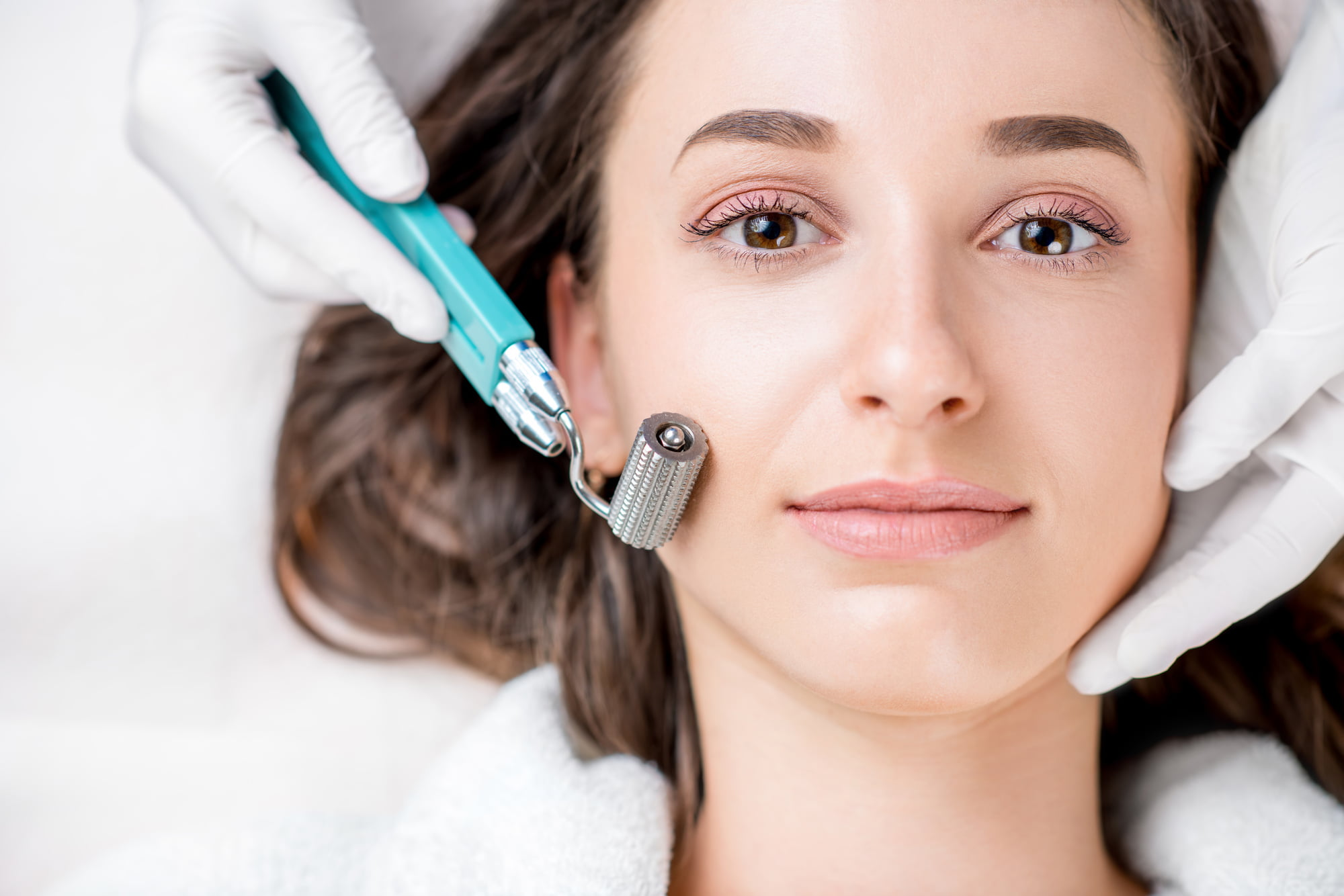 benefits of microneedling