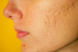 how do acne scars form