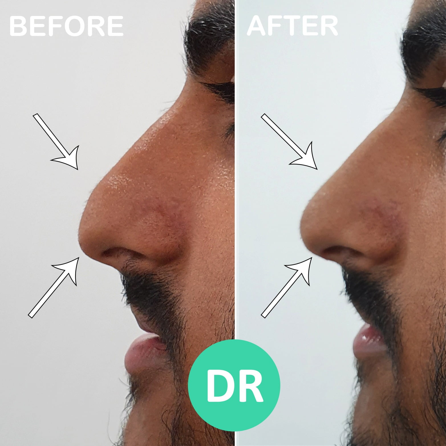 Non surgical rhinoplasty droopy tip