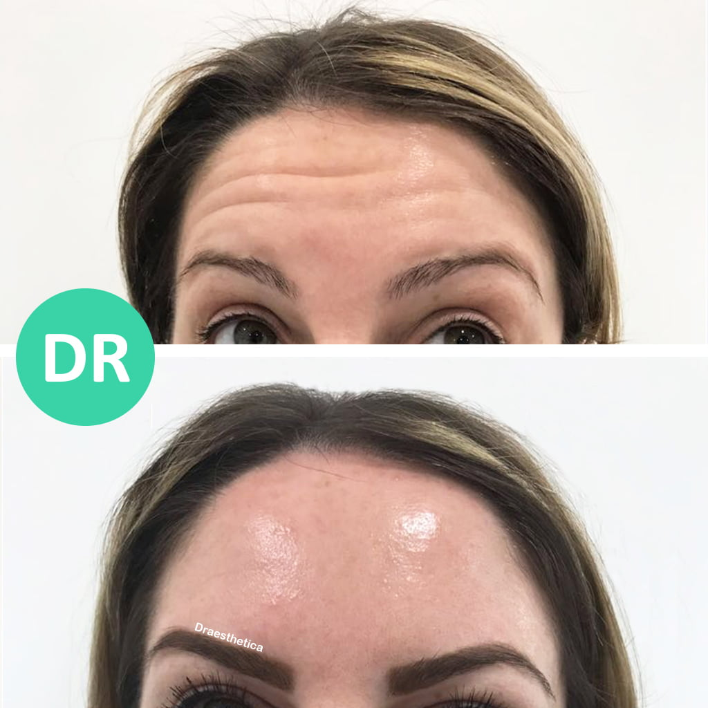 Forehead wrinkles botox before and after