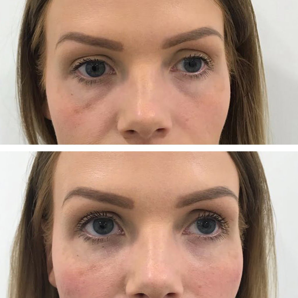Sunken eyes treated with tear trough dermal filler with cannula