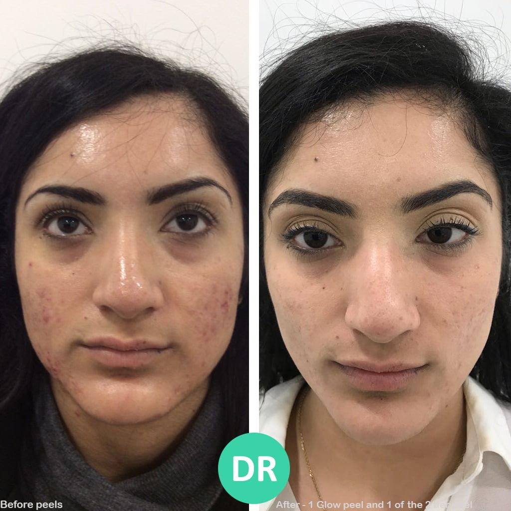 Skin Peel Results before and after