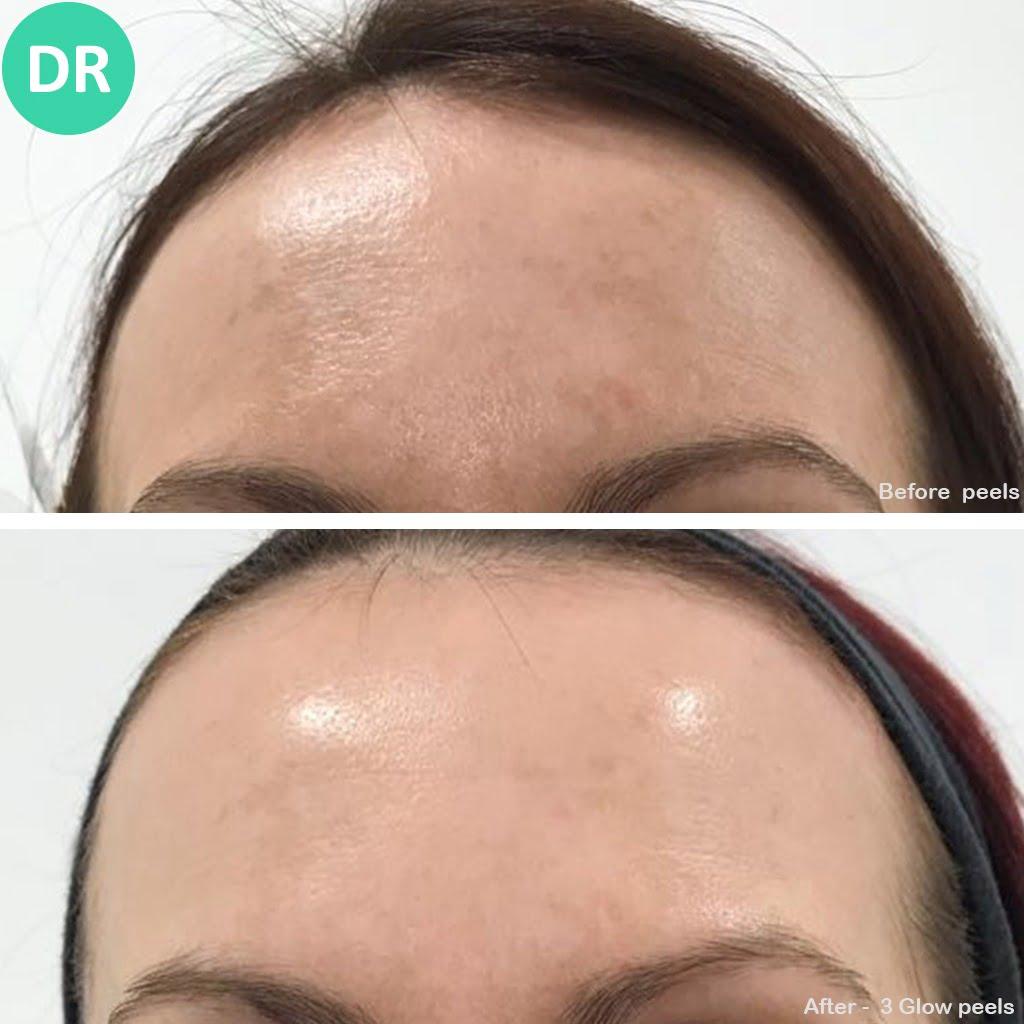 Skin Peel Forehead chemical peel