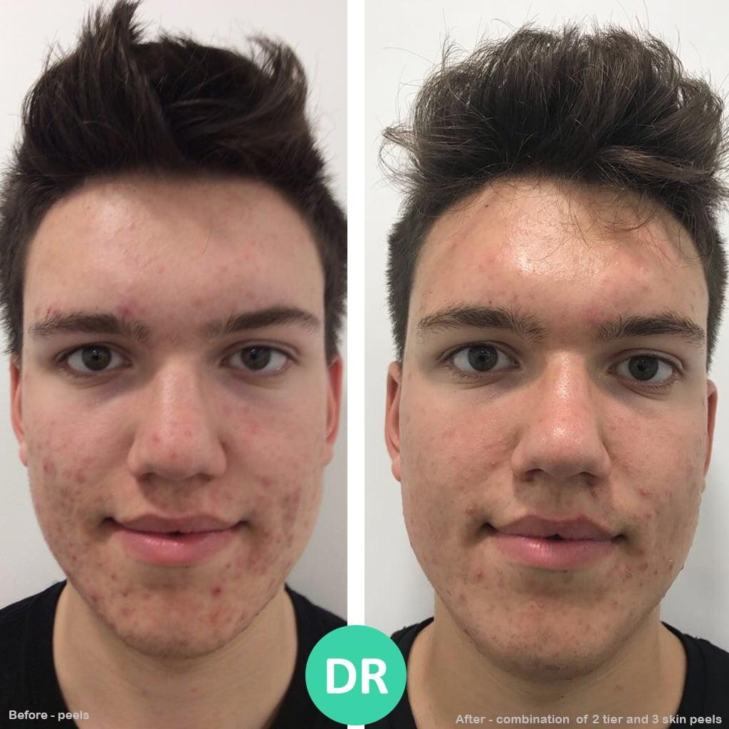 Acne Skin Peel Alumier MD