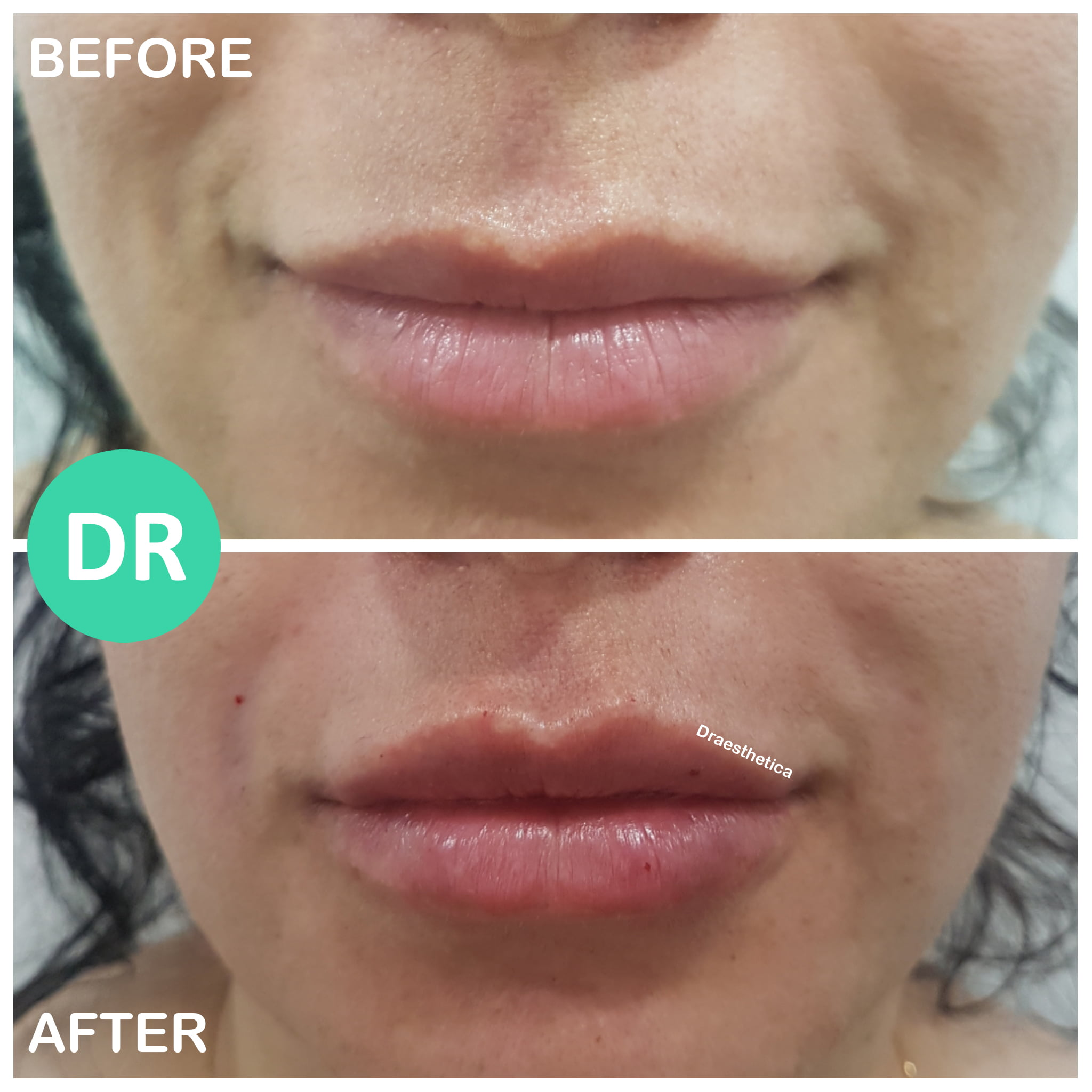 lip filler plump before and after asymmetry