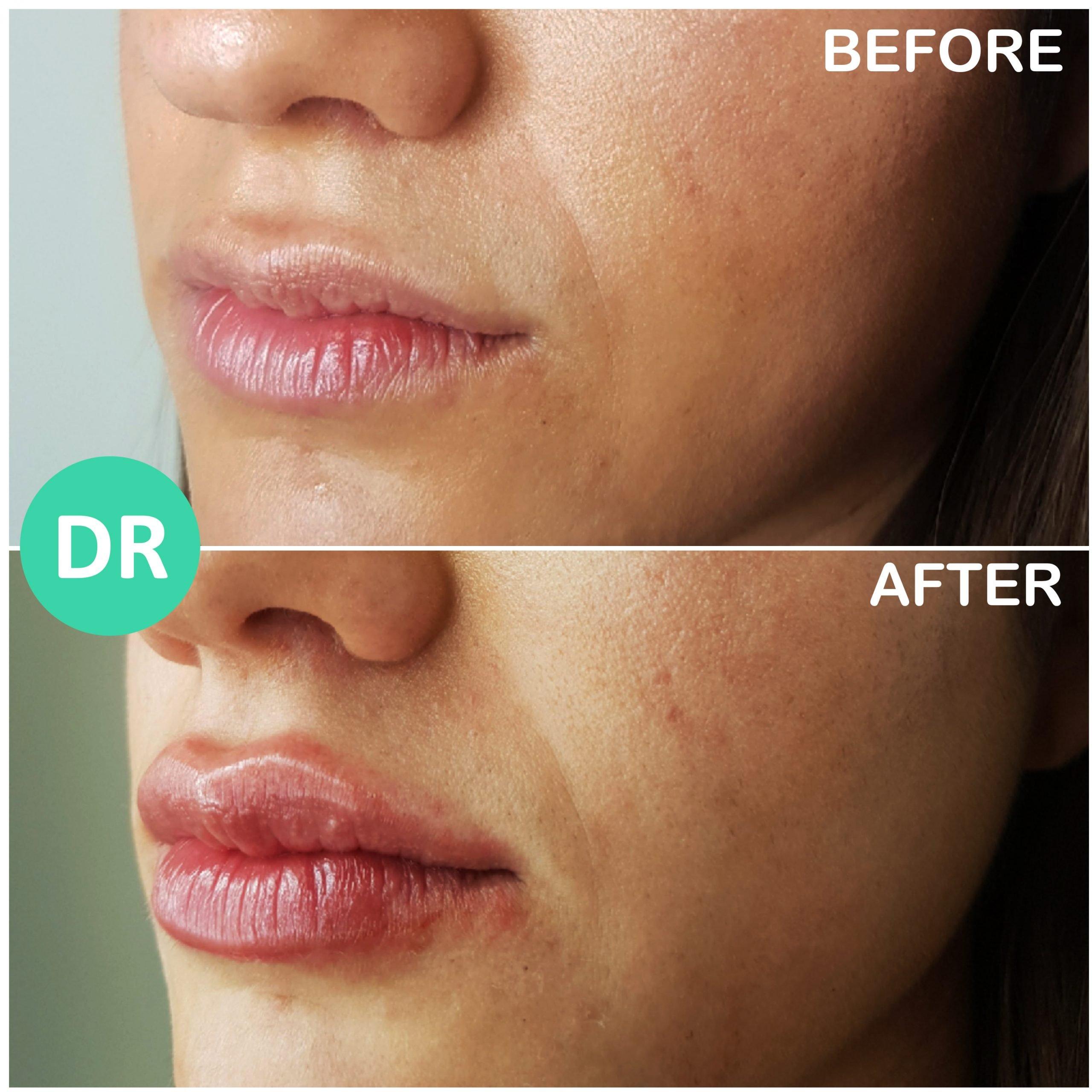 natural lip enhancement definition added