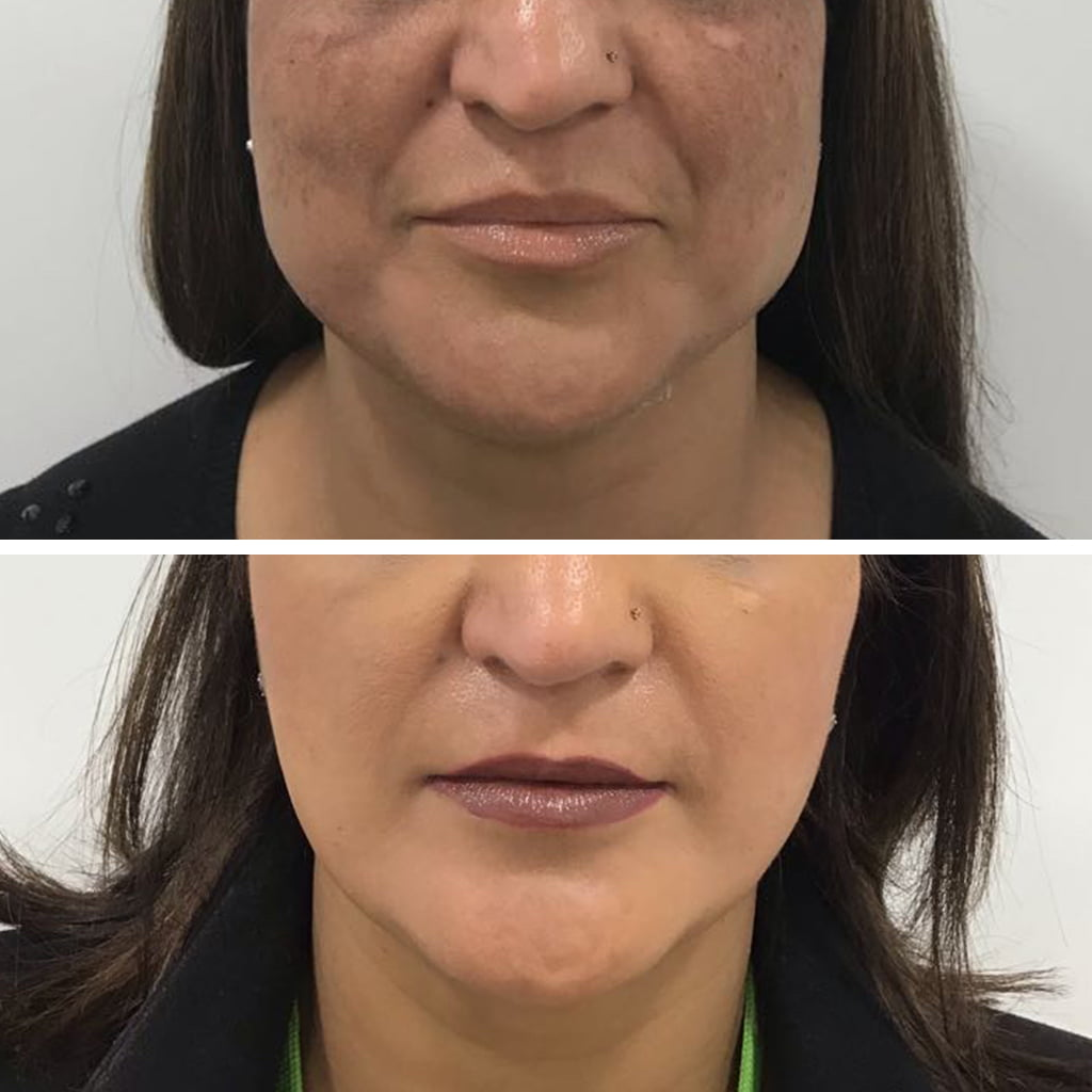 V shape Jawline with Botox use to slim Jaw and thin Face.