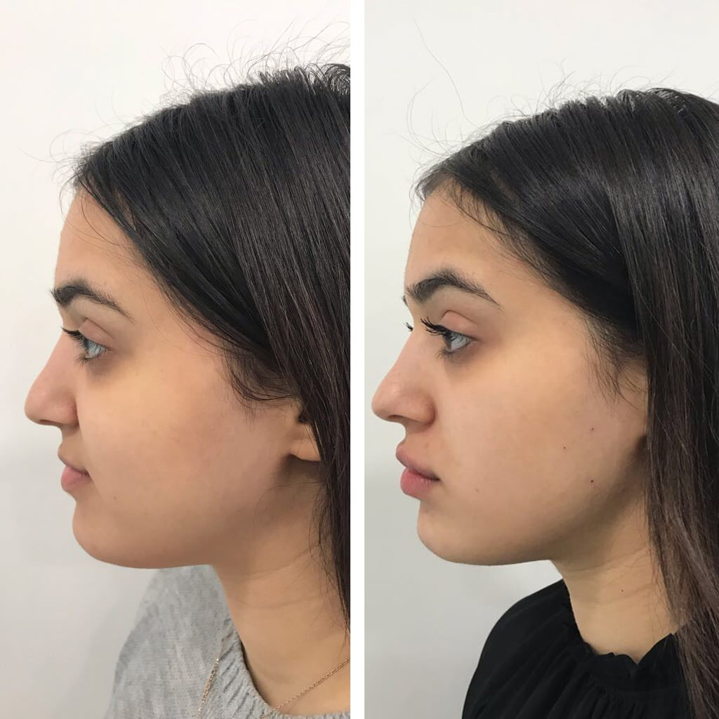 Jawline Botox to reduce square face and made more feminine