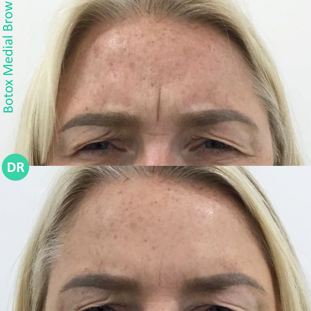 Botox treatment on forehead - helps to improve acne skin