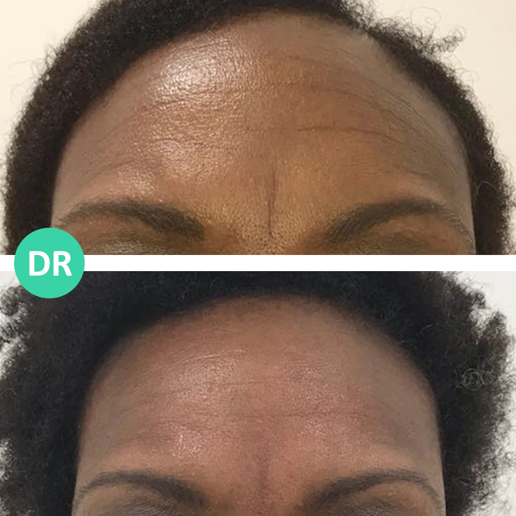 Botox to fix forehead lines