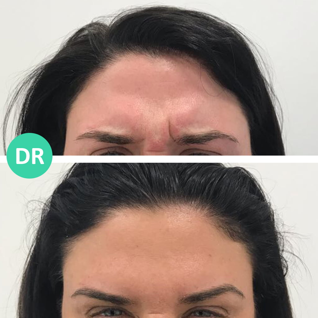 Wrinkle relaxing forehead and frown lines treatment