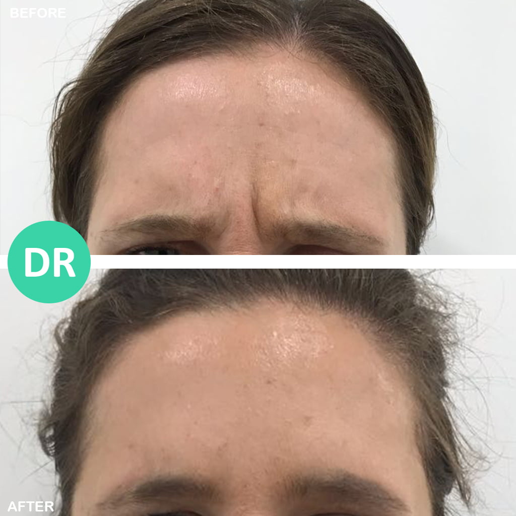 Frown Lines female treated by botox and removes 11 lines