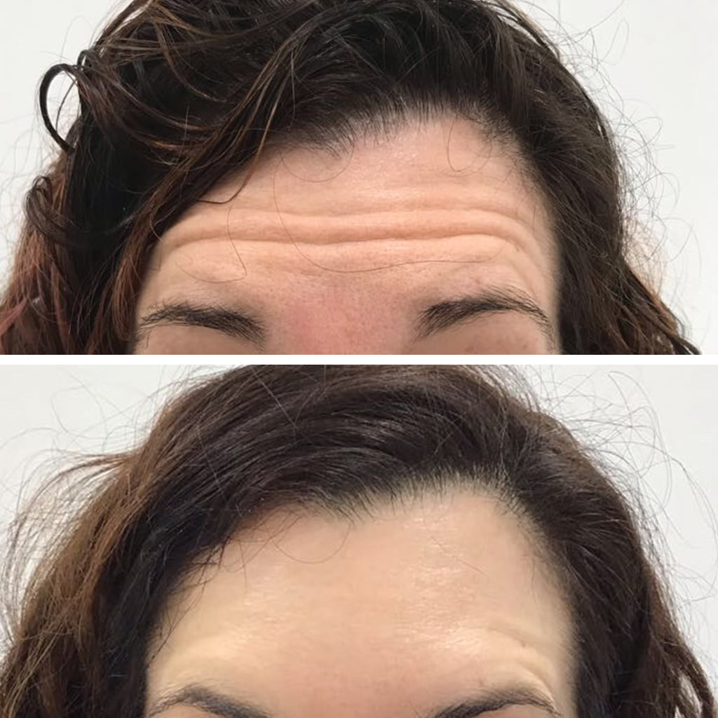 female forehead botox lines