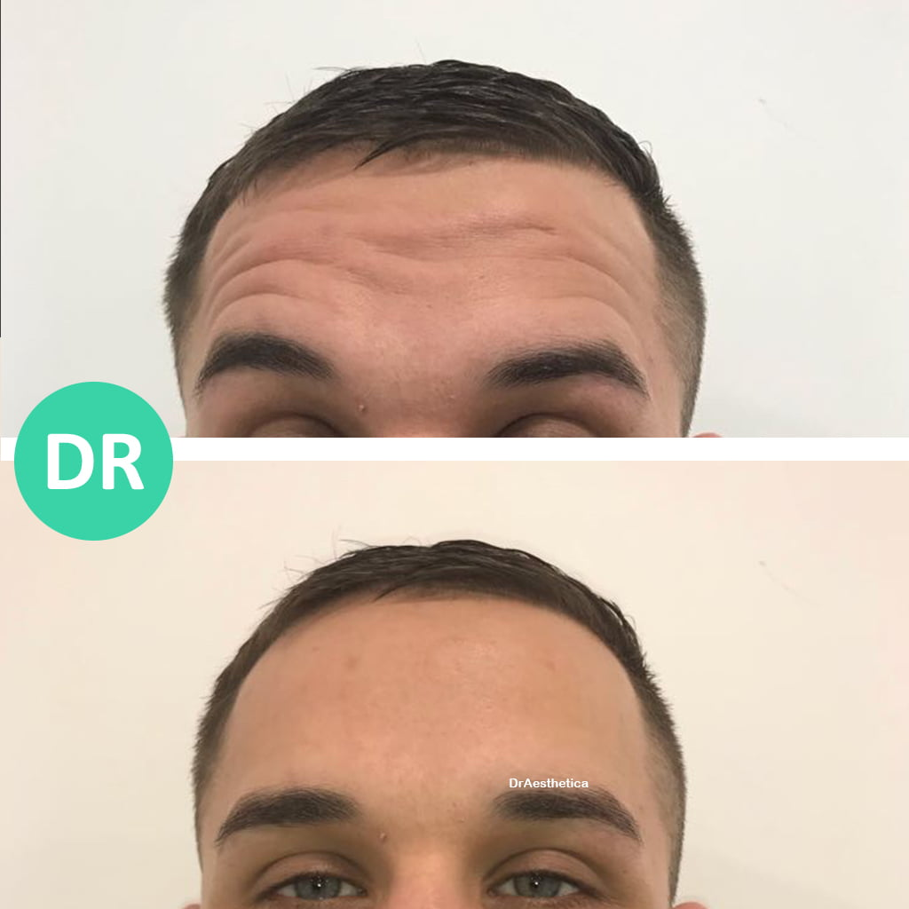 male forehead botox lines