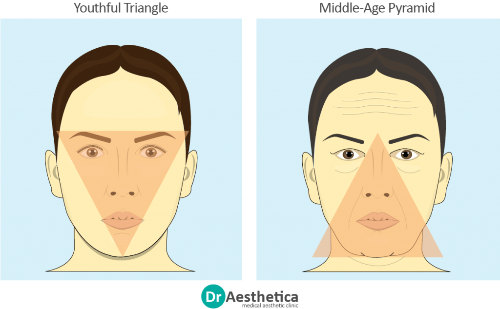 """Sagging Jowls are part of a trio of changes described by """"The Ageing Triangle."""" In the picture there are two face, a youthful one and an older one. Each face has a triangle superimposed to show how the structure of the face changes over time.Youthful faces are represented by an inverted triangle, with the base around the cheeks and eyes and point around the chin. Older faces are the opposite: the jowls move the base around the chin, and the nasolabial folds direct the point towards the nose."""