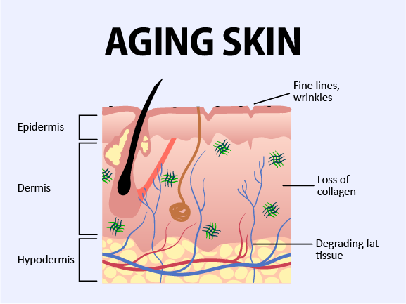 Depicts the loss of collagen and subdermal fat, showing how they cause wrinkles and jowls.