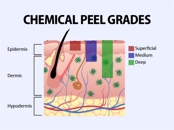 Image depicts the layers of skin and show the difference between skin peels. Surface level peels reach the epidermis, medium peels reach just past the epidermis, and deep peels penetrate deep into the dermis to restore collagen and elastin.
