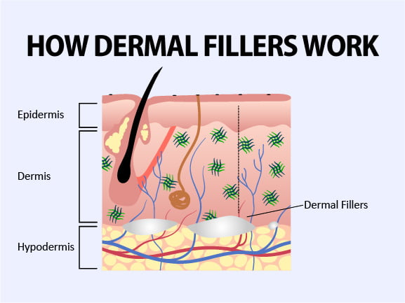 Picture depicts how dermal fillers replace fat loss in the hypodermis, which helps restore the face's fullness