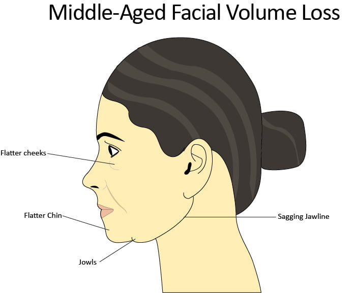Profile depiction of middle-aged facial volume loss and common trouble areas: jowls, flattening cheeks, deepening nasolabial folds, and thinner lips